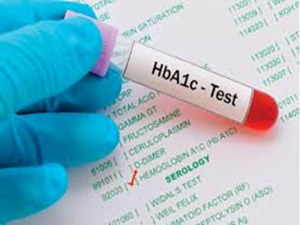 HbA1C test in person's hand
